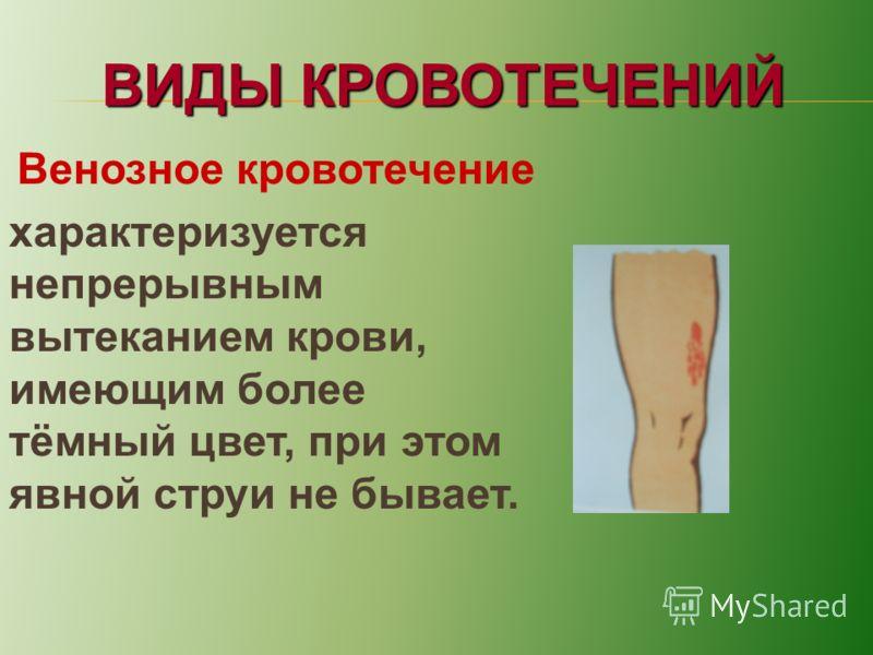 ВИДЫ КРОВОТЕЧЕНИЙ Венозное кровотечение характеризуется непрерывным вытеканием крови, имеющим более тёмный цвет, при этом явной струи не бывает.