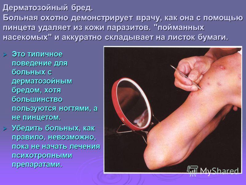 Дерматозойный бред. Больная охотно демонстрирует врачу, как она с помощью пинцета удаляет из кожи паразитов.