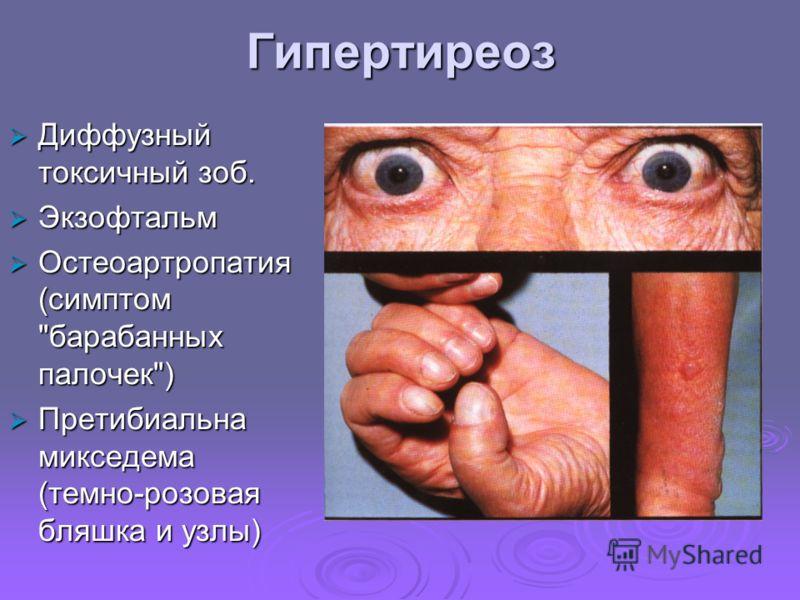 Остеоартропатия