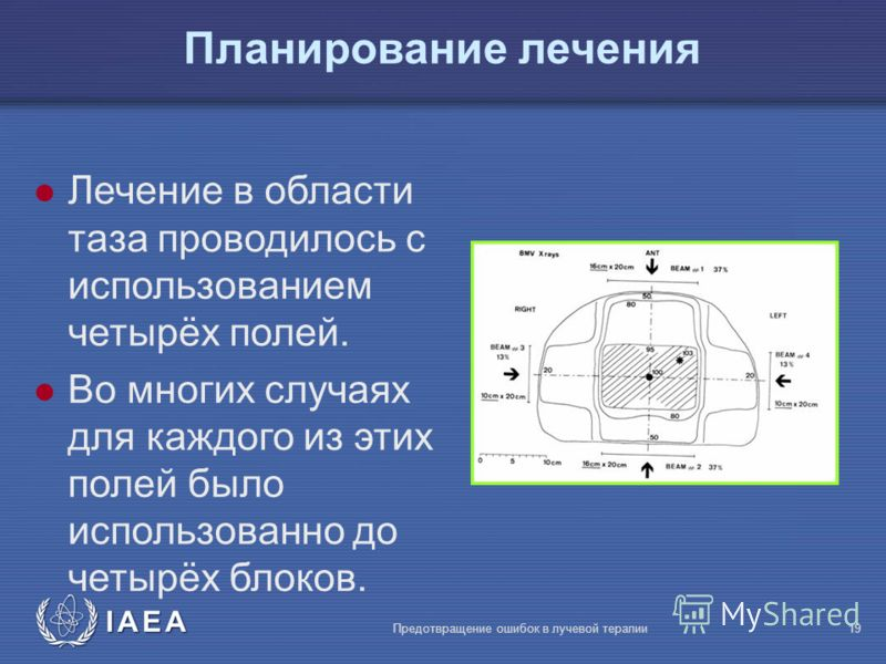 IAEA Предотвращение ошибок в лучевой терапии19 l Лечение в области таза проводилось с использованием четырёх полей. l Во многих случаях для каждого из этих полей было использованно до четырёх блоков. Планирование лечения