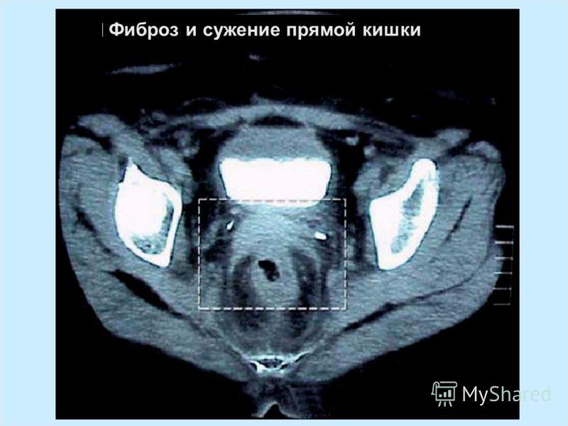IAEA Предотвращение ошибок в лучевой терапии54 Фиброз и сужение прямой кишки