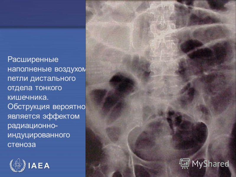 IAEA Предотвращение ошибок в лучевой терапии58 Расширенные наполненые воздухом петли дистального отдела тонкого кишечника. Обструкция вероятно является эффектом радиационно- индуцированного стеноза