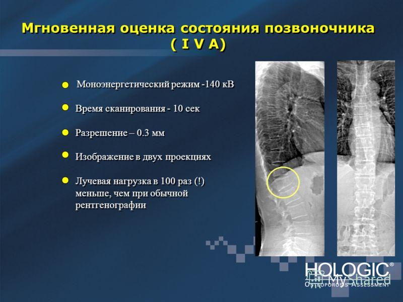 Мгновенная оценка состояния позвоночника ( I V A) Моноэнергетический режим -140 кВ Время сканирования - 10 сек Разрешение – 0.3 мм Изображение в двух проекциях Лучевая нагрузка в 100 раз (!) меньше, чем при обычной рентгенографии Моноэнергетический р