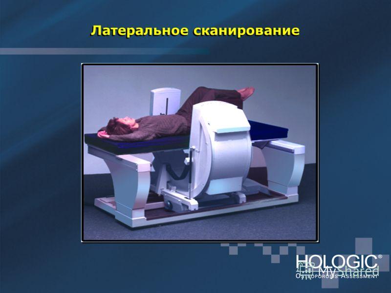 Латеральное сканирование