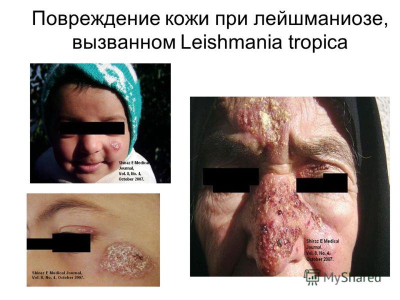 Повреждение кожи при лейшманиозе, вызванном Leishmania tropica