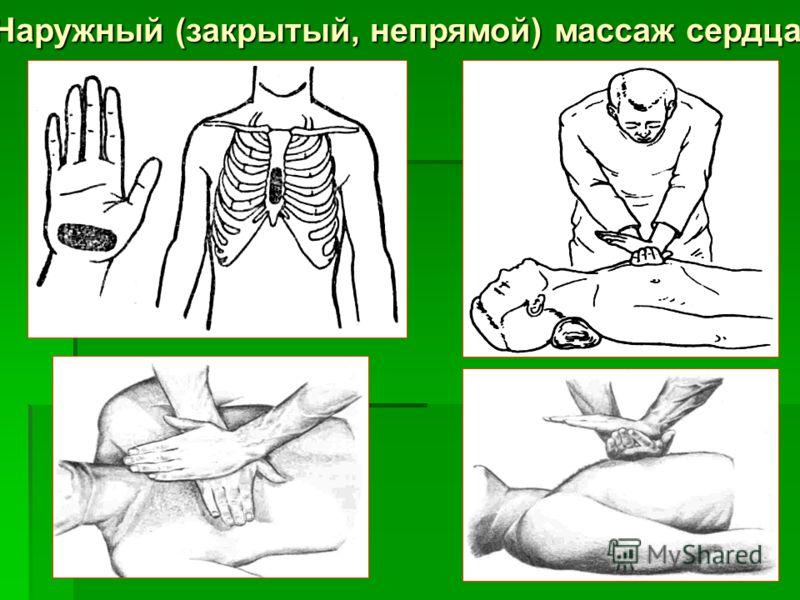 Наружный (закрытый, непрямой) массаж сердца
