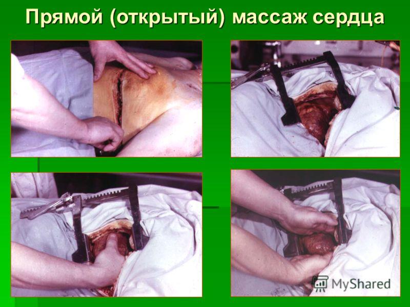 Прямой (открытый) массаж сердца