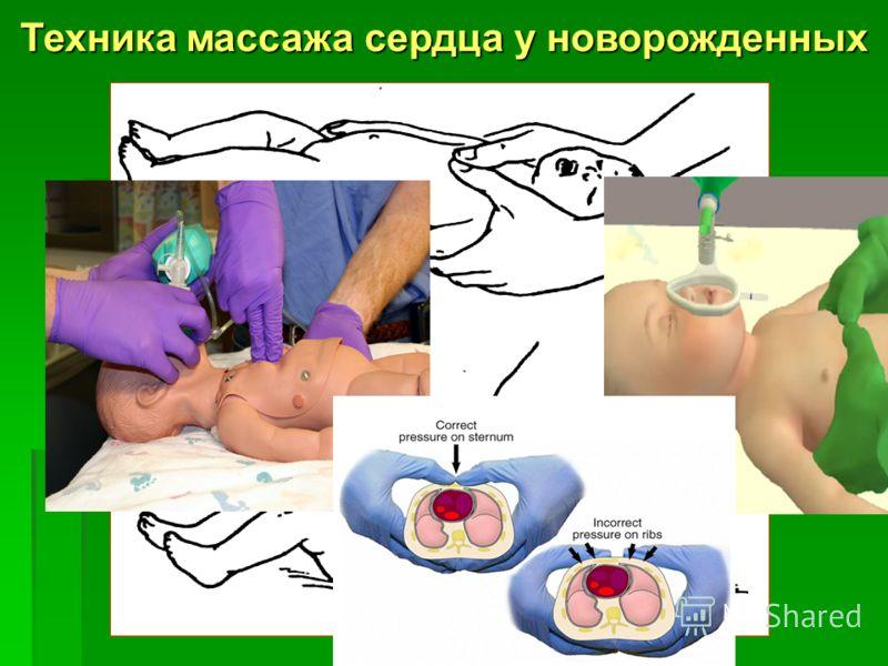 Техника массажа сердца у новорожденных