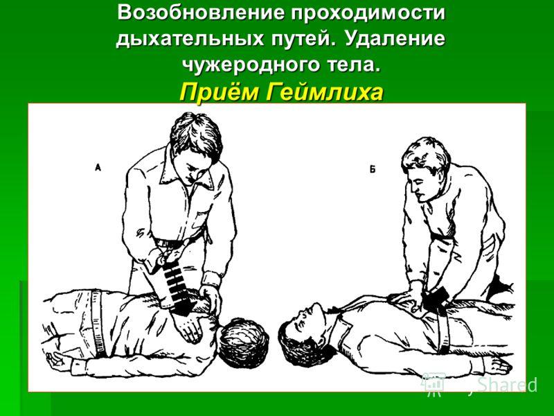 Возобновление проходимости дыхательных путей. Удаление чужеродного тела. Приём Геймлиха