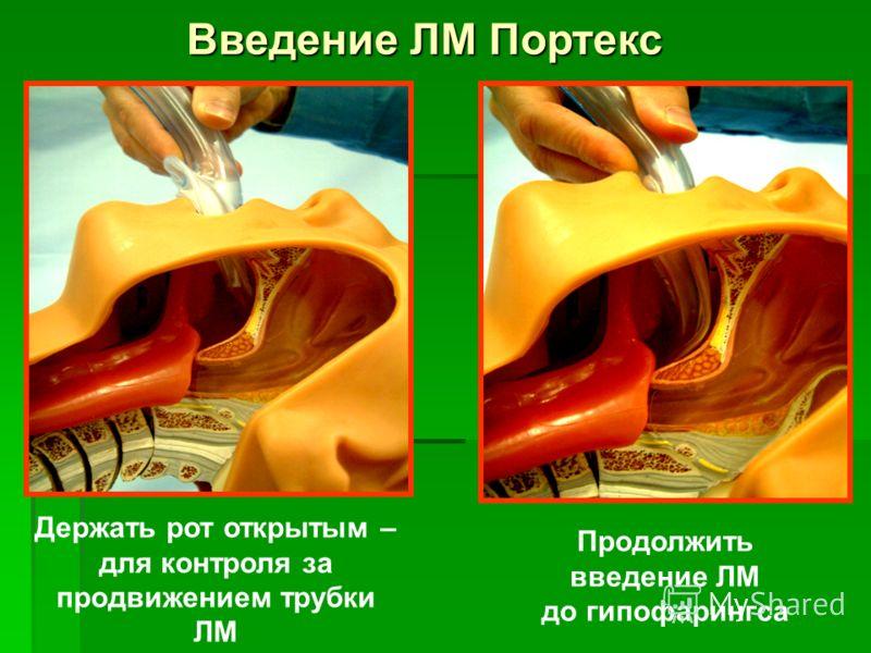 Держать рот открытым – для контроля за продвижением трубки ЛМ Продолжить введение ЛМ до гипофарингса Введение ЛМ Портекс