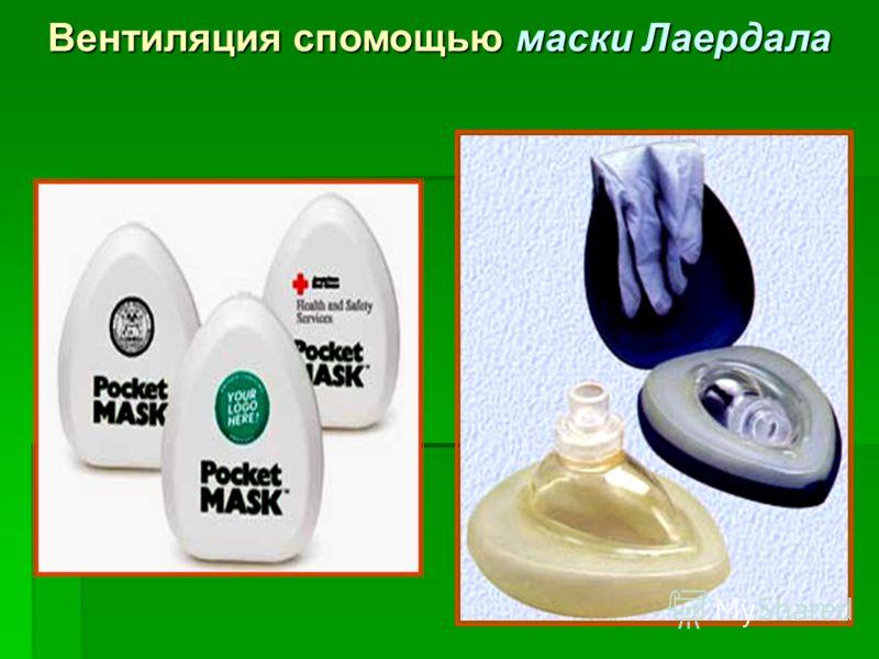 Вентиляция спомощью маски Лаердала