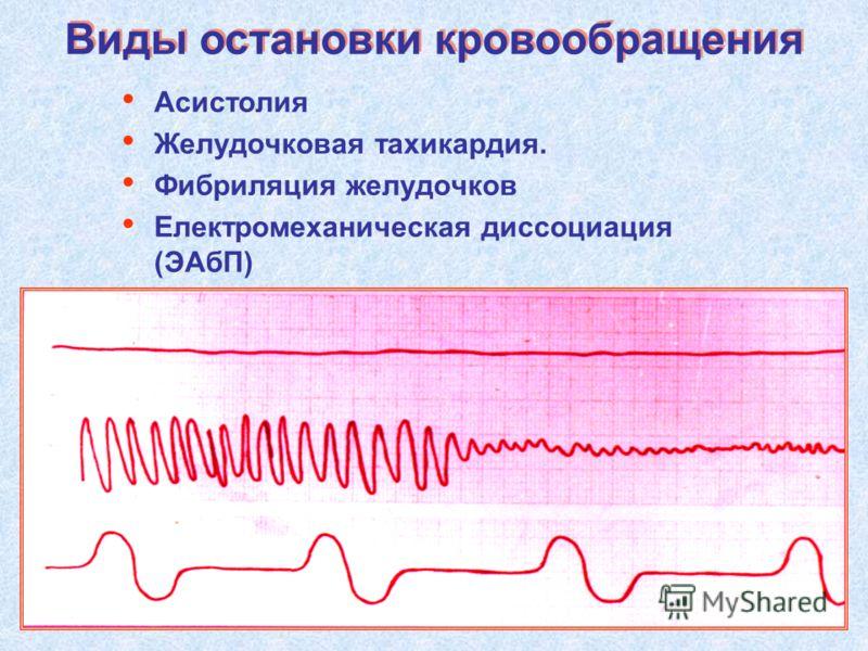 Асистолия Желудочковая тахикардия. Фибриляция желудочков Електромеханическая диссоциация (ЭАбП) Виды остановки кровообращения