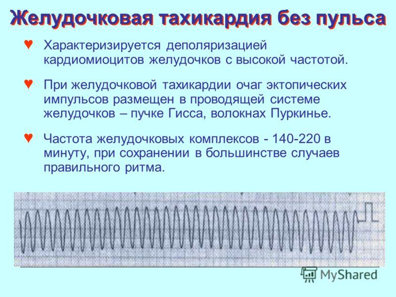 Характеризируется деполяризацией кардиомиоцитов желудочков с высокой частотой. При желудочковой тахикардии очаг эктопических импульсов размещен в проводящей системе желудочков – пучке Гисса, волокнах Пуркинье. Частота желудочковых комплексов - 140-22