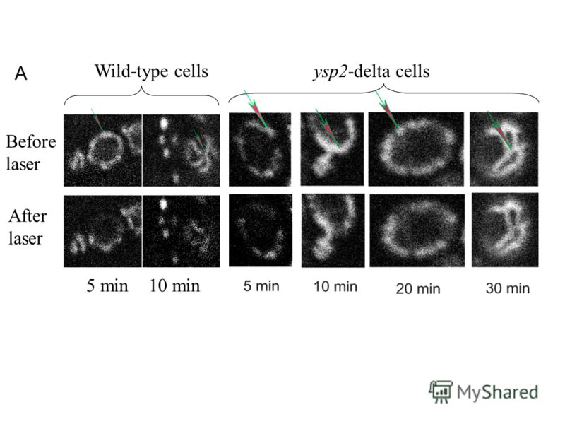 ЛАЗЕР?? Wild-type cells Before laser After laser 5 min 10 min ysp2-delta cells A