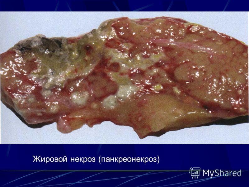 Жировой некроз (панкреонекроз)