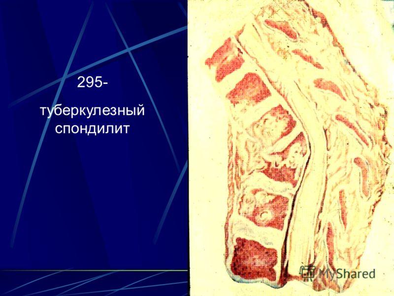 295- туберкулезный спондилит