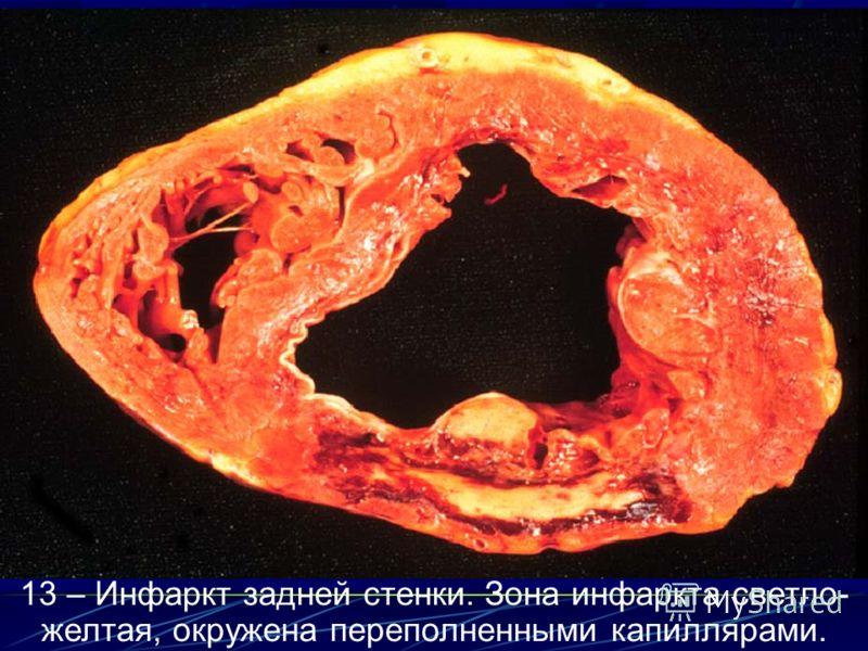 13 – Инфаркт задней стенки. Зона инфаркта светло- желтая, окружена переполненными капиллярами.