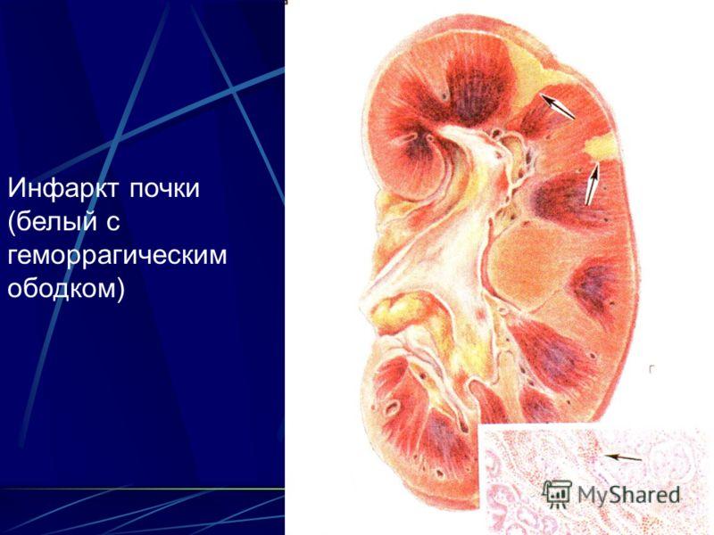 Инфаркт почки (белый с геморрагическим ободком)