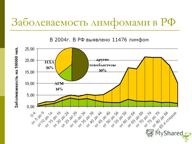 Заболеваемость лимфомами в РФ В 2004г. В РФ выявлено 11476 лимфом