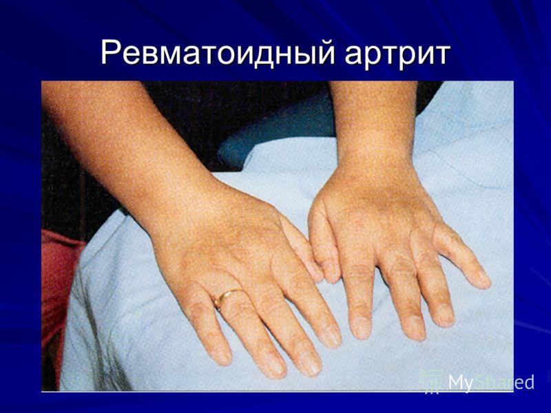 Артрит ревматоидный