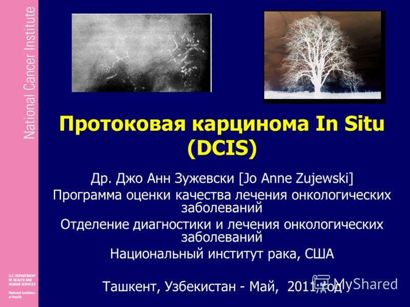 Протоковая карцинома In Situ (DCIS) Др. Джо Анн Зужевски [Jo Anne Zujewski] Программа оценки качества лечения онкологических заболеваний Отделение диагностики и лечения онкологических заболеваний Национальный институт рака, США Ташкент, Узбекистан -