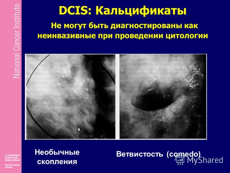 DCIS: Кальцификаты Не могут быть диагностированы как неинвазивные при проведении цитологии Необычные скопления Ветвистость (comedo)