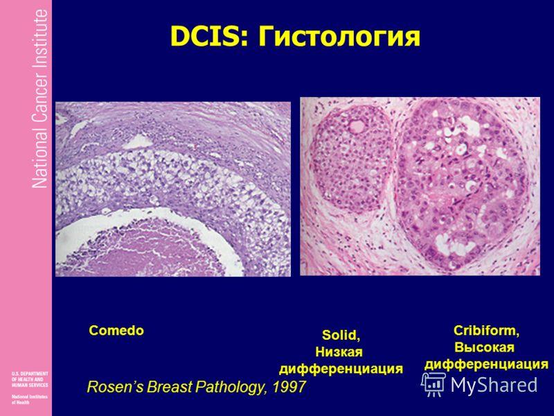 DCIS: Гистология Rosens Breast Pathology, 1997 Comedo Solid, Низкая дифференциация Cribiform, Высокая дифференциация