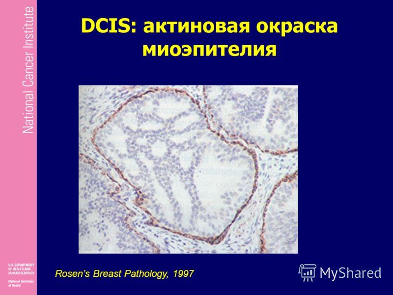 DCIS: актиновая окраска миоэпителия Rosens Breast Pathology, 1997