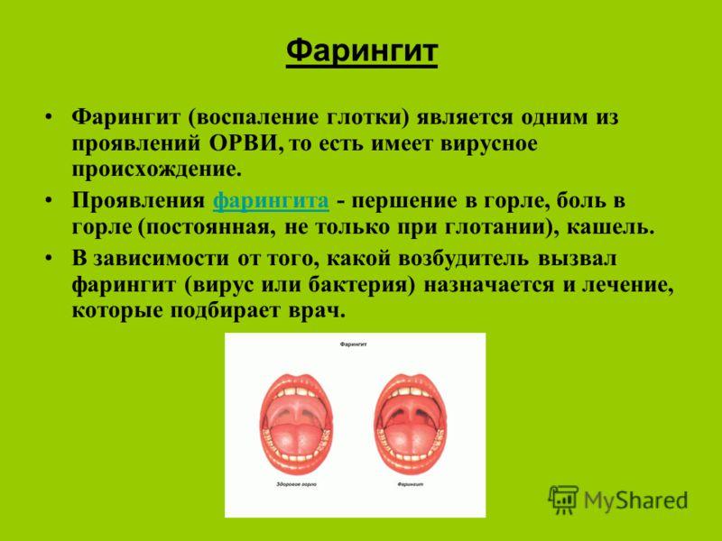 Фарингит Фарингит (воспаление глотки) является одним из проявлений ОРВИ, то есть имеет вирусное происхождение. Проявления фарингита - першение в горле, боль в горле (постоянная, не только при глотании), кашель.фарингита В зависимости от того, какой в