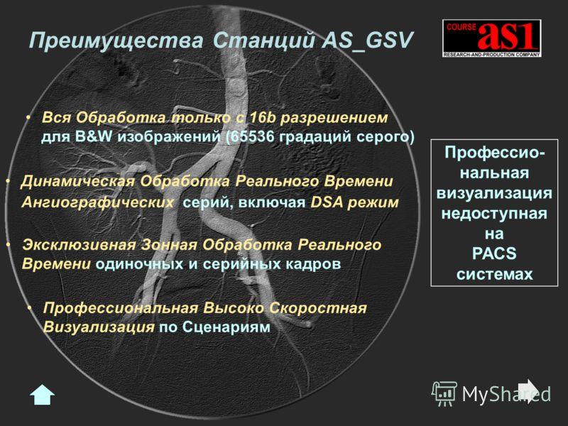 Преимущества Станций AS_GSV Динамическая Обработка Реального Времени Ангиографических серий, включая DSA режим Эксклюзивная Зонная Обработка Реального Времени одиночных и серийных кадров Профессиональная Высоко Скоростная Визуализация по Сценариям Вс
