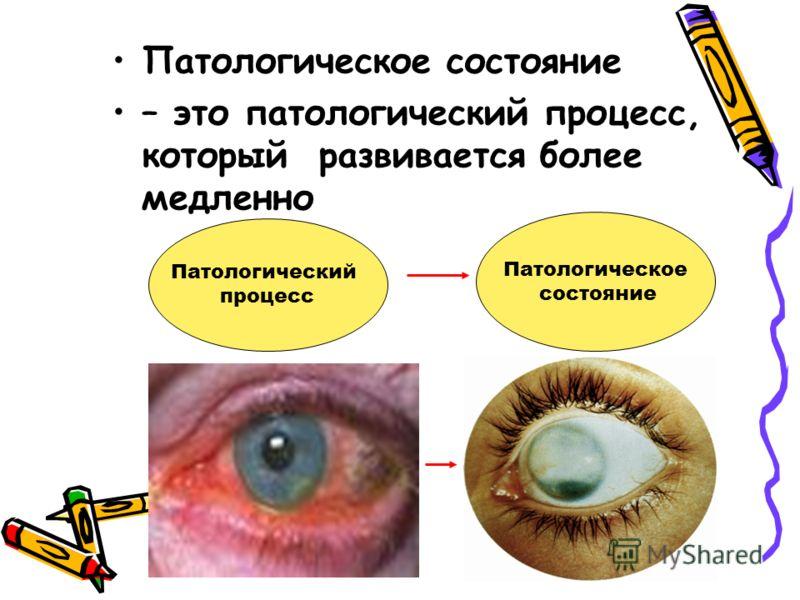 Патологическое состояние – это патологический процесс, который развивается более медленно Патологический процесс Патологическое состояние