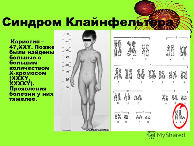 Синдром Клайнфельтера Кариотип – 47,ХХY. Позже были найдены больные с большим количеством Х-хромосом (ХХХY, ХХХХY). Проявления болезни у них тяжелее.