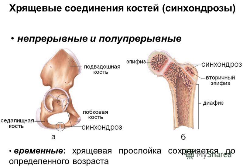 Хрящевые соединения костей (синхондрозы) временные: хрящевая прослойка сохраняется до определенного возраста непрерывные и полупрерывные
