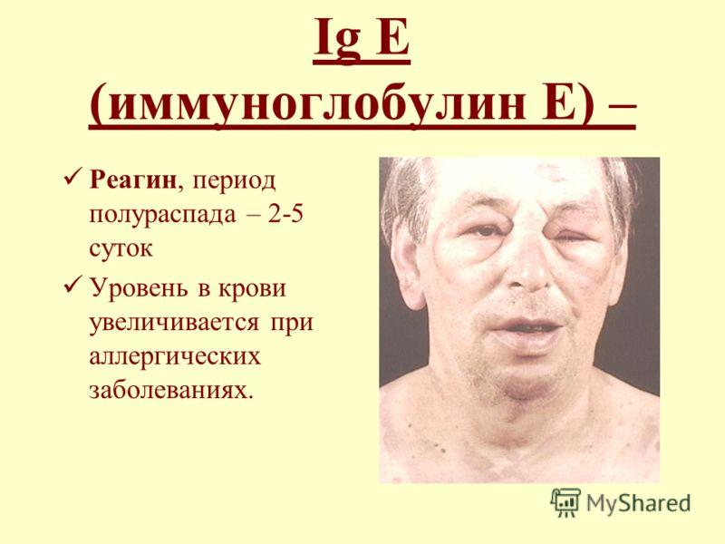 Ig Е (иммуноглобулин Е) – Реагин, период полураспада – 2-5 суток Уровень в крови увеличивается при аллергических заболеваниях.