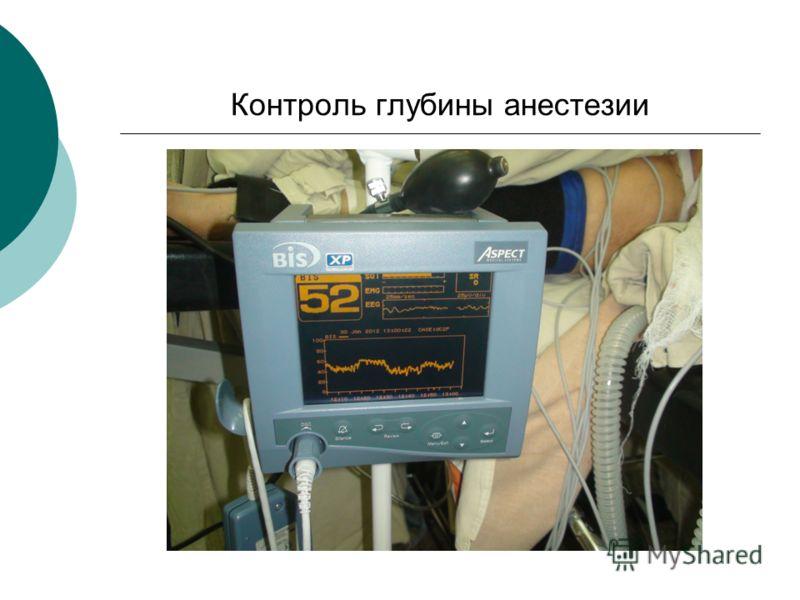Контроль глубины анестезии