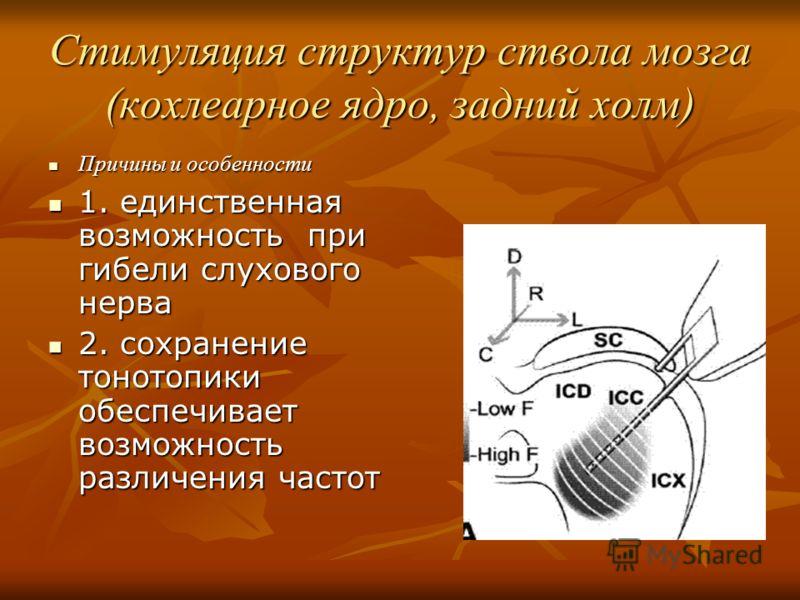 Стимуляция структур ствола мозга (кохлеарное ядро, задний холм) Причины и особенности Причины и особенности 1. единственная возможность при гибели слухового нерва 1. единственная возможность при гибели слухового нерва 2. сохранение тонотопики обеспеч