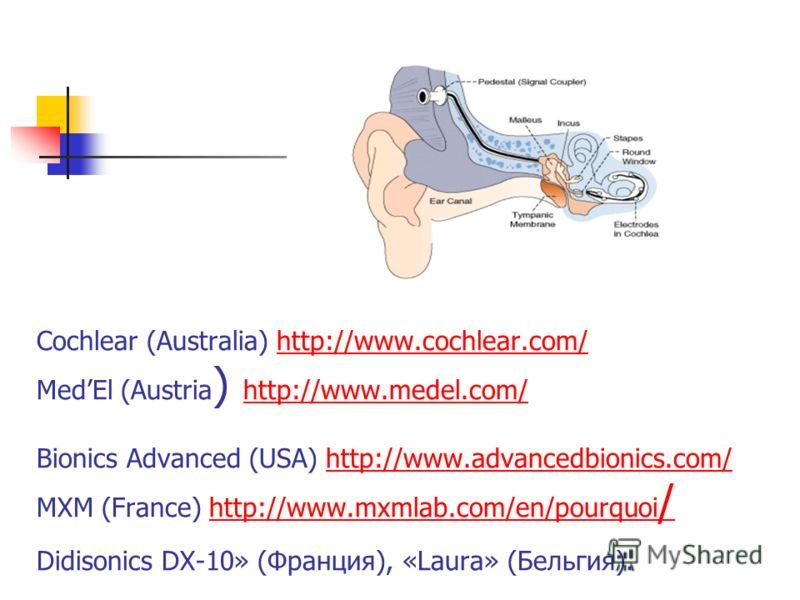 Cochlear (Australia) http://www.cochlear.com/ MedEl (Austria ) http://www.medel.com/ Bionics Advanced (USA) http://www.advancedbionics.com/ МХМ (France) http://www.mxmlab.com/en/pourquoi / Didisonics DX-10» (Франция), «Laura» (Бельгия).http://www.coc
