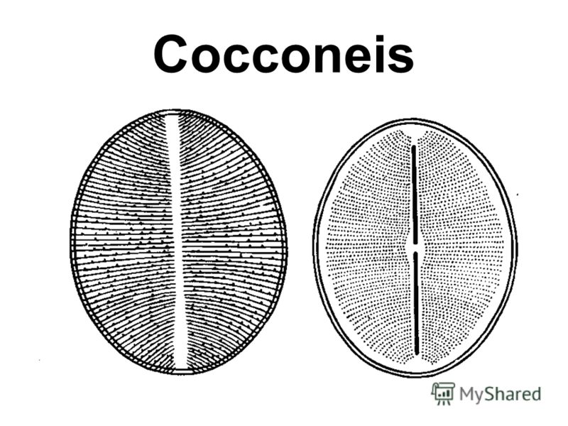 Cocconeis