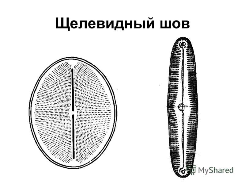 Щелевидный шов