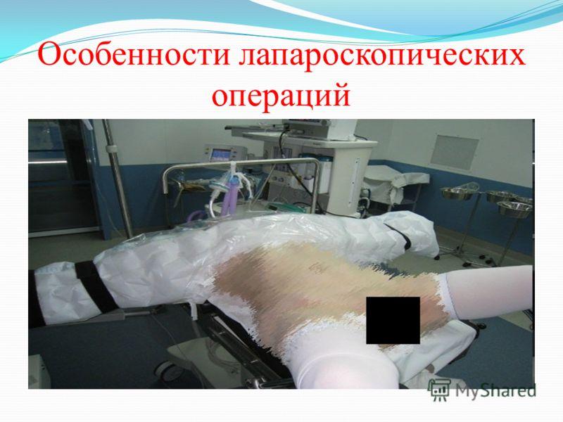 Особенности лапароскопических операций