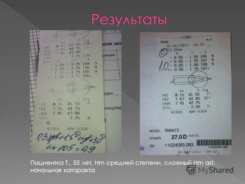 Пациентка Т., 55 лет, Hm средней степени, сложный Hm ast, начальная катаракта