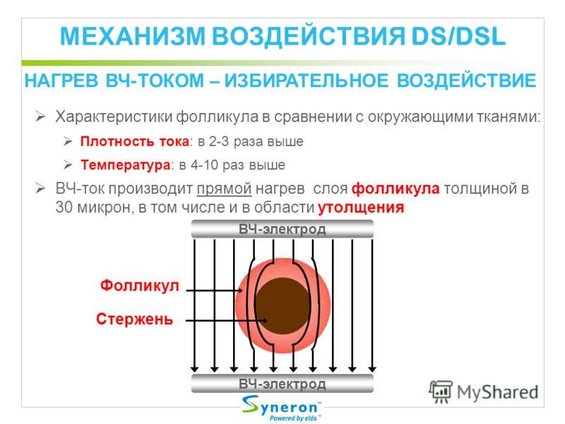 МЕХАНИЗМ ВОЗДЕЙСТВИЯ DS/DSL Характеристики фолликула в сравнении с окружающими тканями: Плотность тока: в 2-3 раза выше Температура: в 4-10 раз выше ВЧ-ток производит прямой нагрев слоя фолликула толщиной в 30 микрон, в том числе и в области утолщени