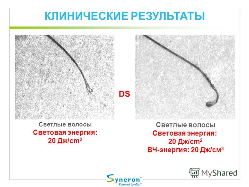 КЛИНИЧЕСКИЕ РЕЗУЛЬТАТЫ DS Светлые волосы Световая энергия: 20 Дж/cm 2 ВЧ-энергия: 20 Дж/cм 3 Светлые волосы Световая энергия: 20 Дж/cm 2