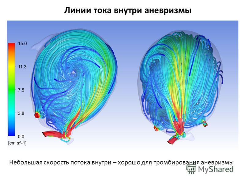 Линии тока внутри аневризмы Небольшая скорость потока внутри – хорошо для тромбирования аневризмы