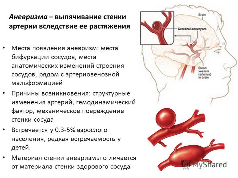 Места появления аневризм: места бифуркации сосудов, места анатомических изменений строения сосудов, рядом с артериовенозной мальформацией Причины возникновения: структурные изменения артерий, гемодинамический фактор, механическое повреждение стенки с
