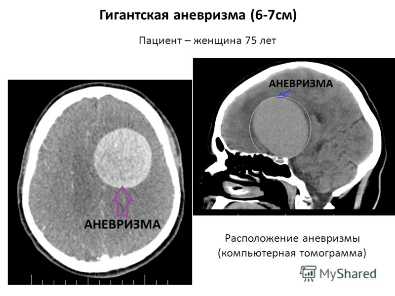 Гигантская аневризма (6-7см) Пациент – женщина 75 лет Расположение аневризмы (компьютерная томограмма)