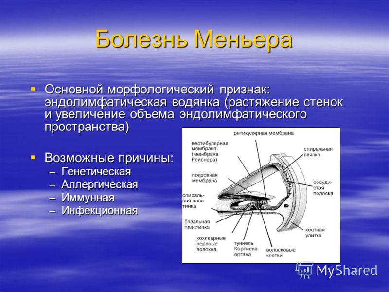 Болезнь Меньера Основной морфологический признак: эндолимфатическая водянка (растяжение стенок и увеличение объема эндолимфатического пространства) Основной морфологический признак: эндолимфатическая водянка (растяжение стенок и увеличение объема энд