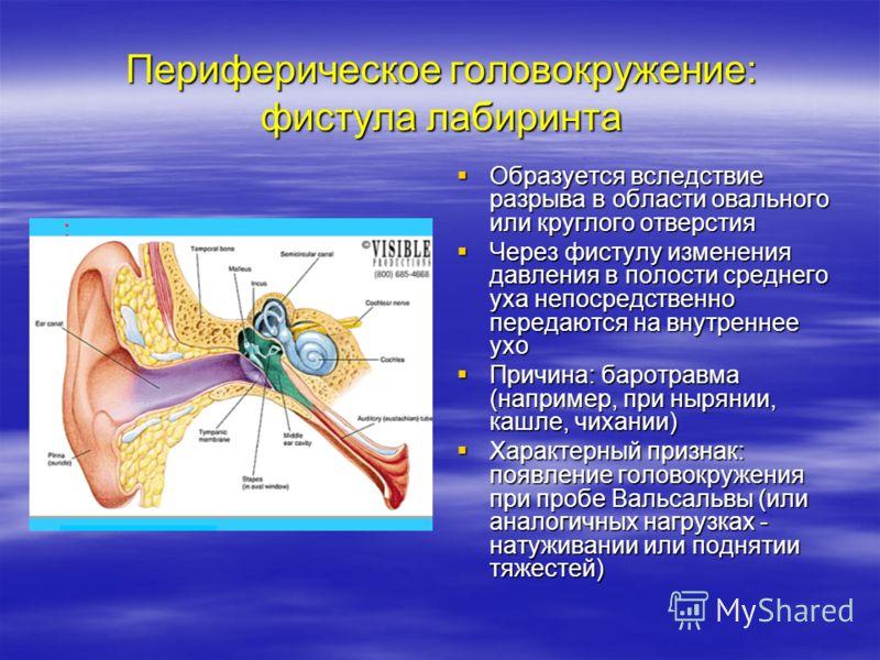 Периферическое головокружение: фистула лабиринта Образуется вследствие разрыва в области овального или круглого отверстия Образуется вследствие разрыва в области овального или круглого отверстия Через фистулу изменения давления в полости среднего уха