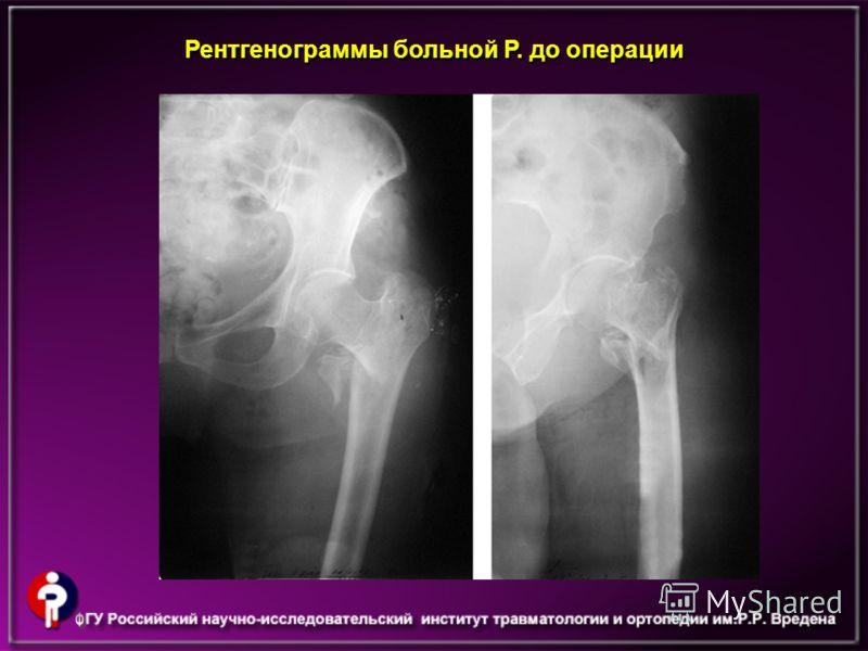 Рентгенограммы больной Р. до операции