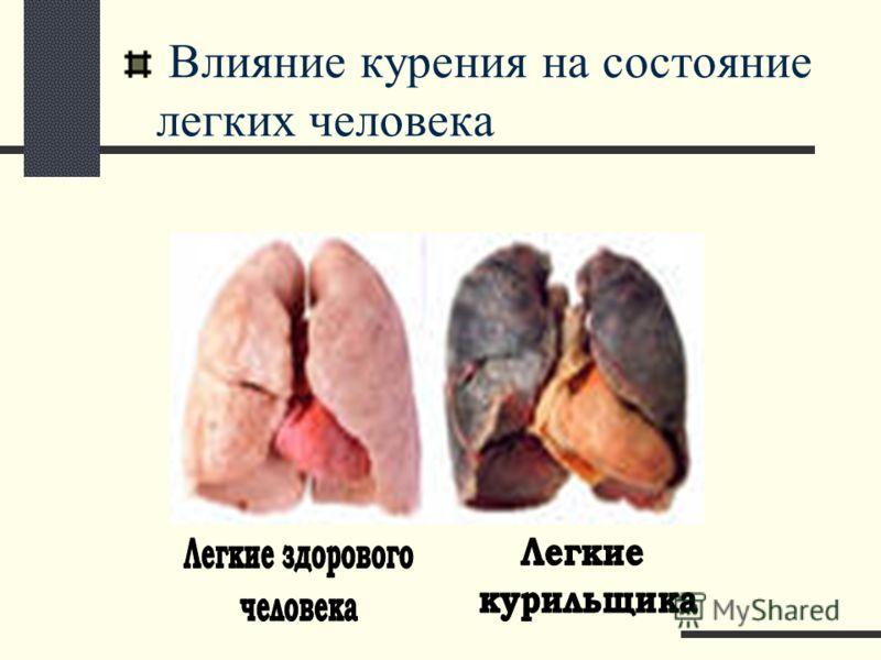 Влияние курения на состояние легких человека